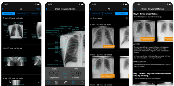 x-ray app for iphone